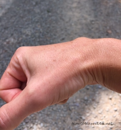 Ganglion Cyst of the Wrist | How to Have it All